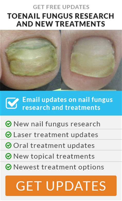toenail treatment safety with lamisil for fungus picture 1