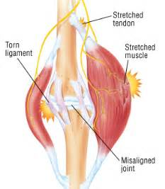 diagnose muscle tears picture 3