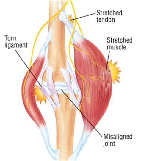 care for muscle tares and sprains picture 10