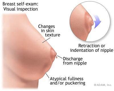 erection while getting ultrasound on balls picture 11
