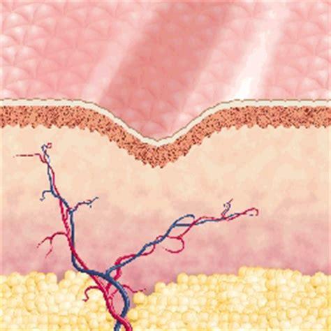 carbon dioxide acne picture 17