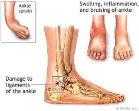 care for muscle tares and sprains picture 8