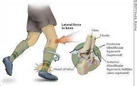 ankle joint picture 2