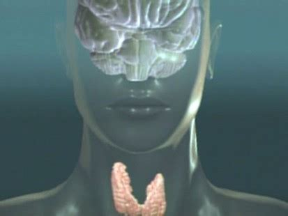 dr oz overactive thyroid picture 14