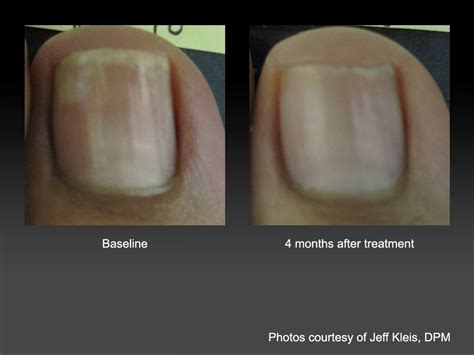 laser treatment for fungi nails in nc picture 5