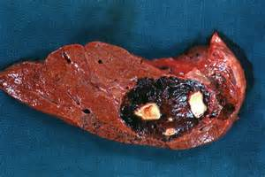 treatment for giant liver hemangioma picture 5