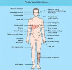 acute leukaemia and liver failure at diagnosis picture 6