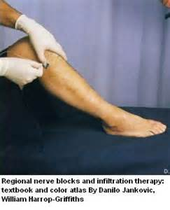 hiv biopsy leg nerve muscle picture 3
