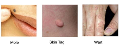 warts moles skin tag removal in ritm picture 3