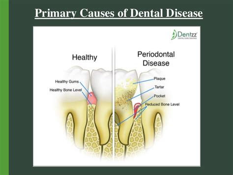 causes of teeth problems picture 1