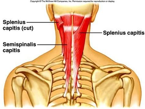 neck pain relief picture 6