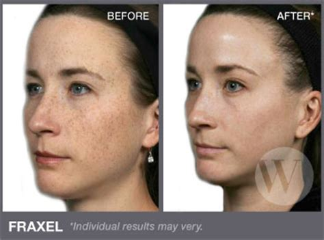 danger of fraxel skin treatment picture 2