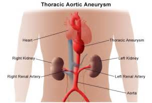 gastrointestinal bleeding ociated with aortic aneurysm picture 9