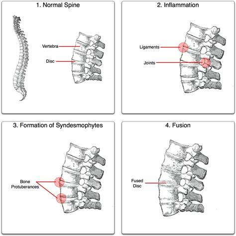 degenerative joint diseases picture 10