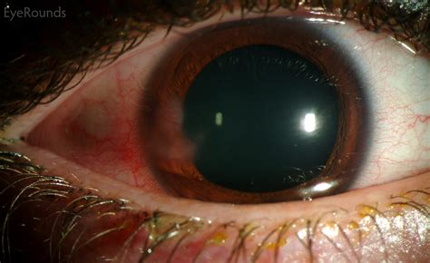 pictures of eye herpes picture 3