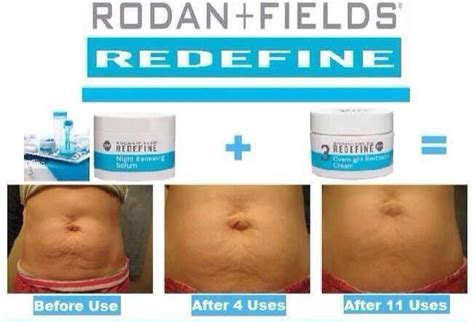 rodan and fields for cellulite and stretch marks picture 3