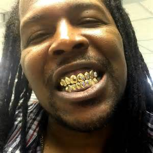 gold silver teeth picture 6