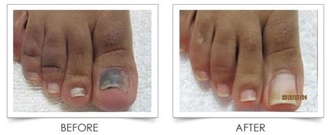 laser nail fungus treatment centers,louisiana picture 3