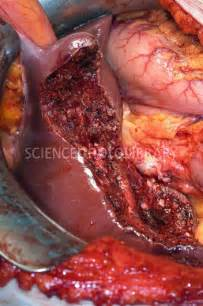 cancer of the gall bladder picture 15