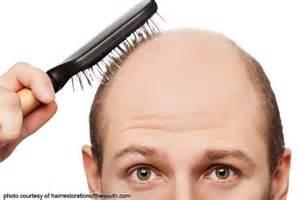 ano ang sanhi ng lose hair picture 7