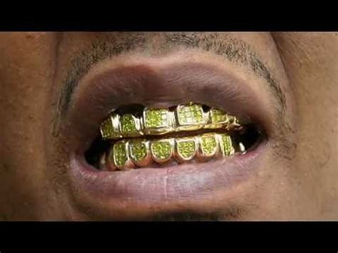 diamond teeth grills picture 2