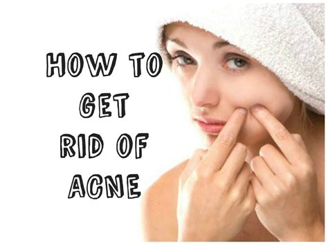 where can i buy clindatech acne treatment in picture 5