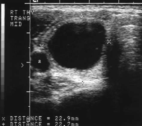 what is a mildly hypervascular thyroid nodule? picture 1
