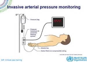 Protocol invasive monitors for blood pressure picture 1