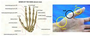 basilar joint arthritis picture 2