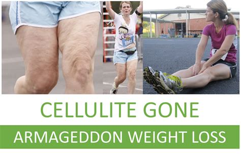 testimonials of females who lost cellulite with diet picture 8