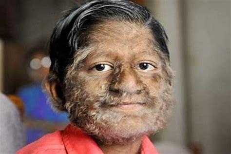 decreased and skin impairment picture 2