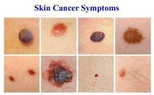 skin cancer systoms picture 2
