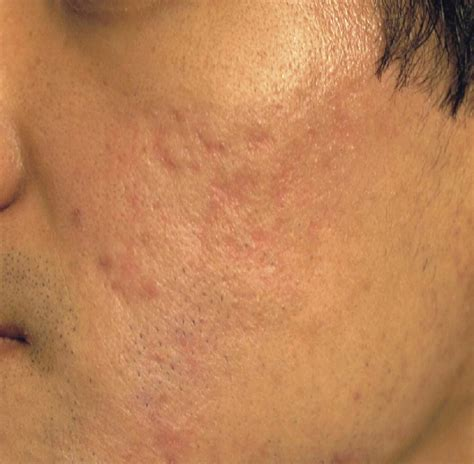 conceal genital acne picture 14