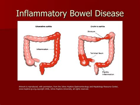 bowel disorders picture 1