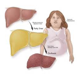 elevated alt and fatty liver picture 1