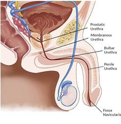 ayurvedic drugs for urethral stricture picture 6