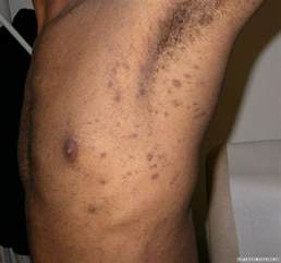 liver spots on penis picture 1