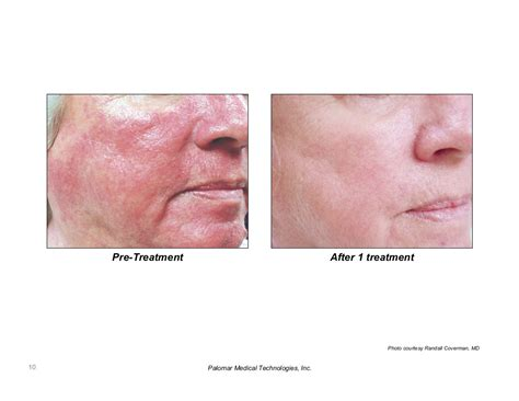 ipl laser results on acne marks picture 3