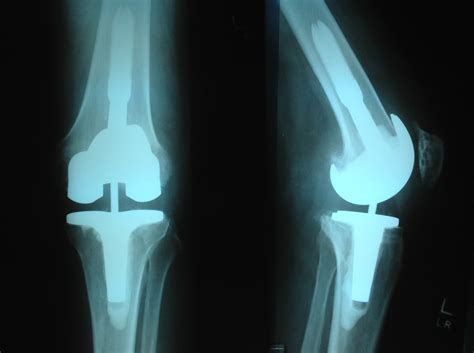 joint mobilizations after total knee arthroplasty picture 5