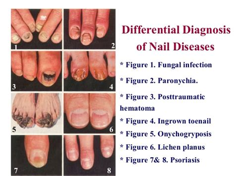 different types of skin cancer picture 10