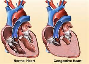congenital heart condition in adolescent with high blood picture 17