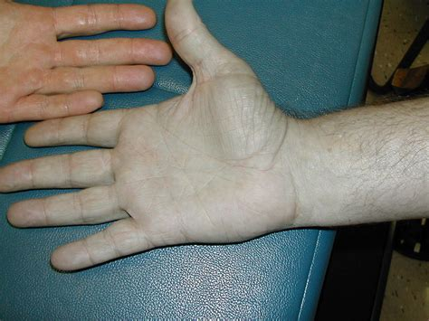 discoloration of skin picture 11