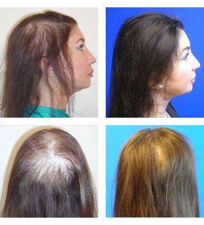 androgenetic alopecia and picture 6