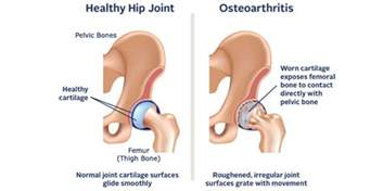 discribe pain in hip joint from oa picture 1