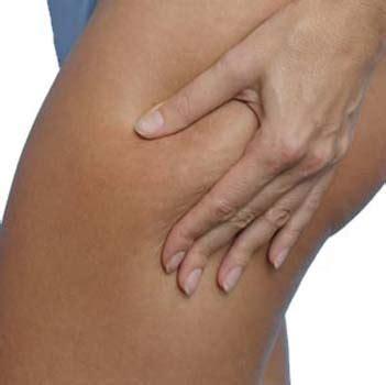 cellulite picture 9