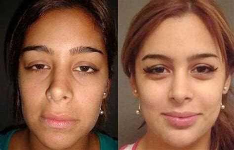 loria platinum procedure before and after picture 1