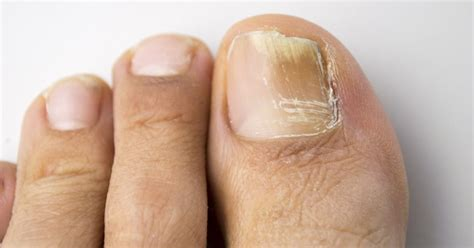toe nails yellow from smoking picture 11