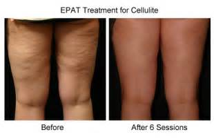new treatments for cellulite picture 5