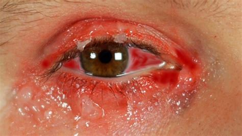 bacterial eye infections picture 6