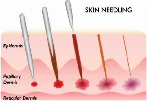 success stories for on skin needling stretchmarks picture 4